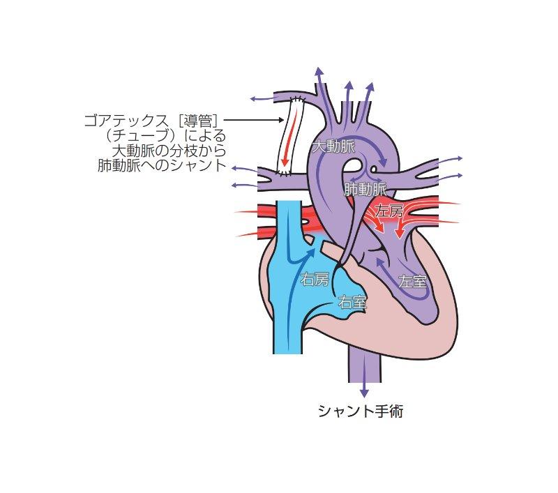 心臓血管外科 | 千葉市立海浜病院